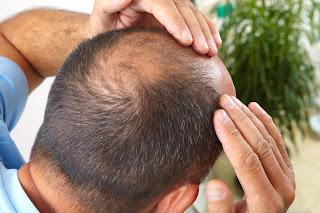 علاج تساقط الشعر الدهني للرجال