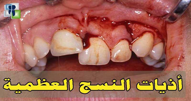 أذية العظم أثناء قلع الأسنان وطريقة العلاج والتدبير