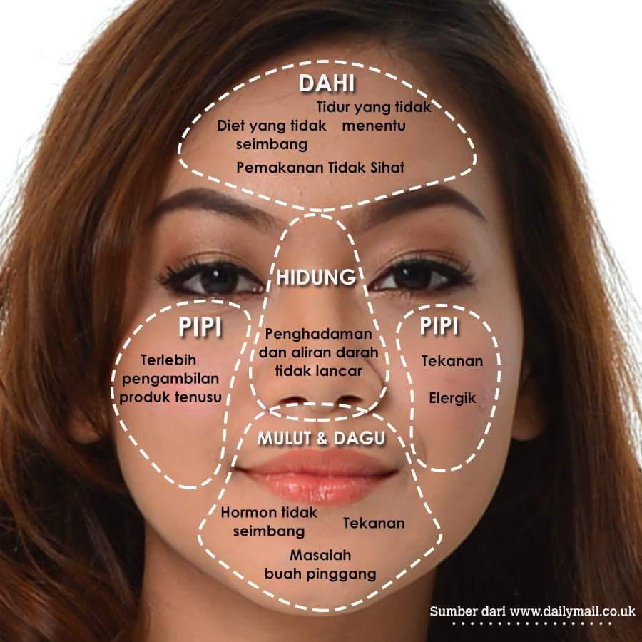 Image result for punca-punca jerawat