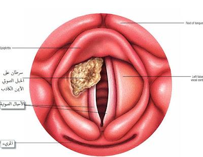 شكل سرطان الحلق والحنجرة