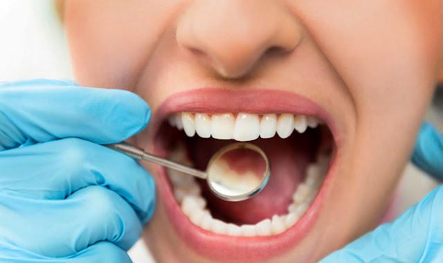 تسوس الاسنان من الجنب خطورة تسوس الاسنان كيف ازيل تسوس الاسنان علاج تسوس الاسنان في المنزل تسوس الاسنان الامامية اسباب تسوس الاسنان رغم تنظيفها علاج تسوس الاسنان بدون طبيب علاج تسوس الاسنان عند الطبيب .