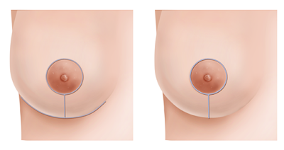 inverted-T-anchor-breast-reduction