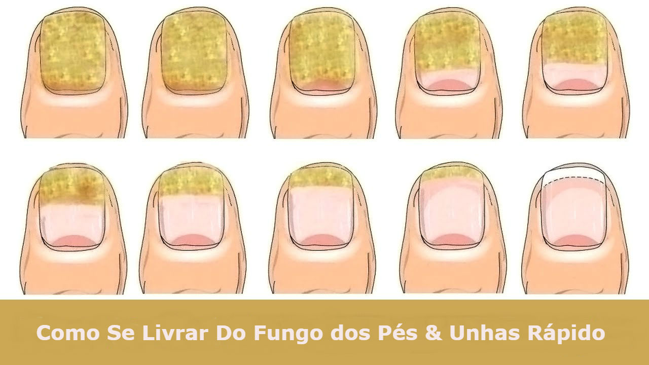 how to get hard skin off feet using listerine