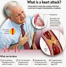 10 SYMPTOMS OF HEART ATTACK