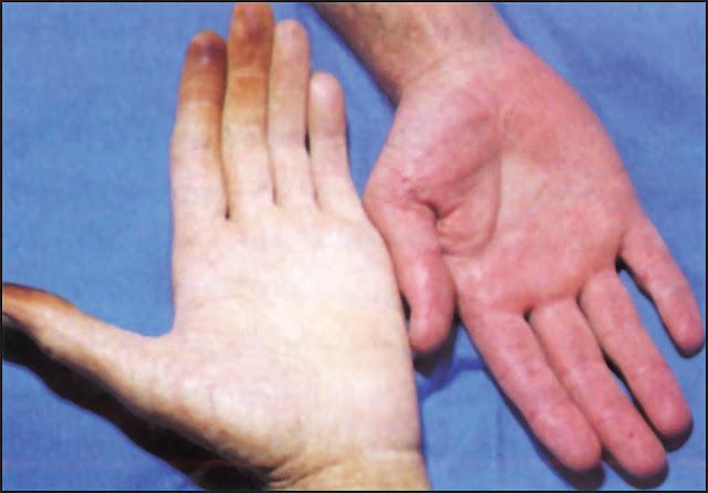 اعراض نقص الحديد والاسباب وعوامل الخطر وكيفية الوقاية