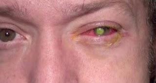 هذا الرجل أصيب بالعمى بسبب شيء نفعله يوميا