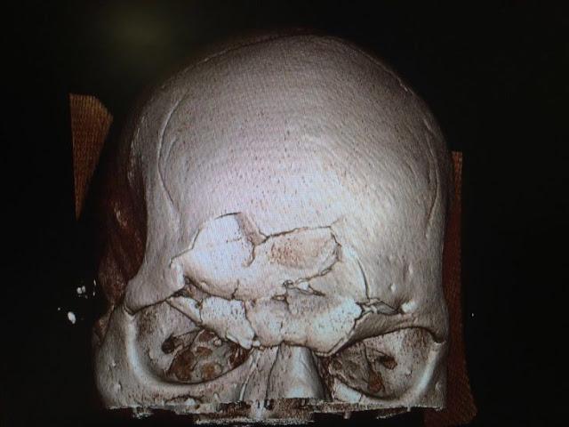 Así quedó Cyborg Santos luego de su fractura de cráneo