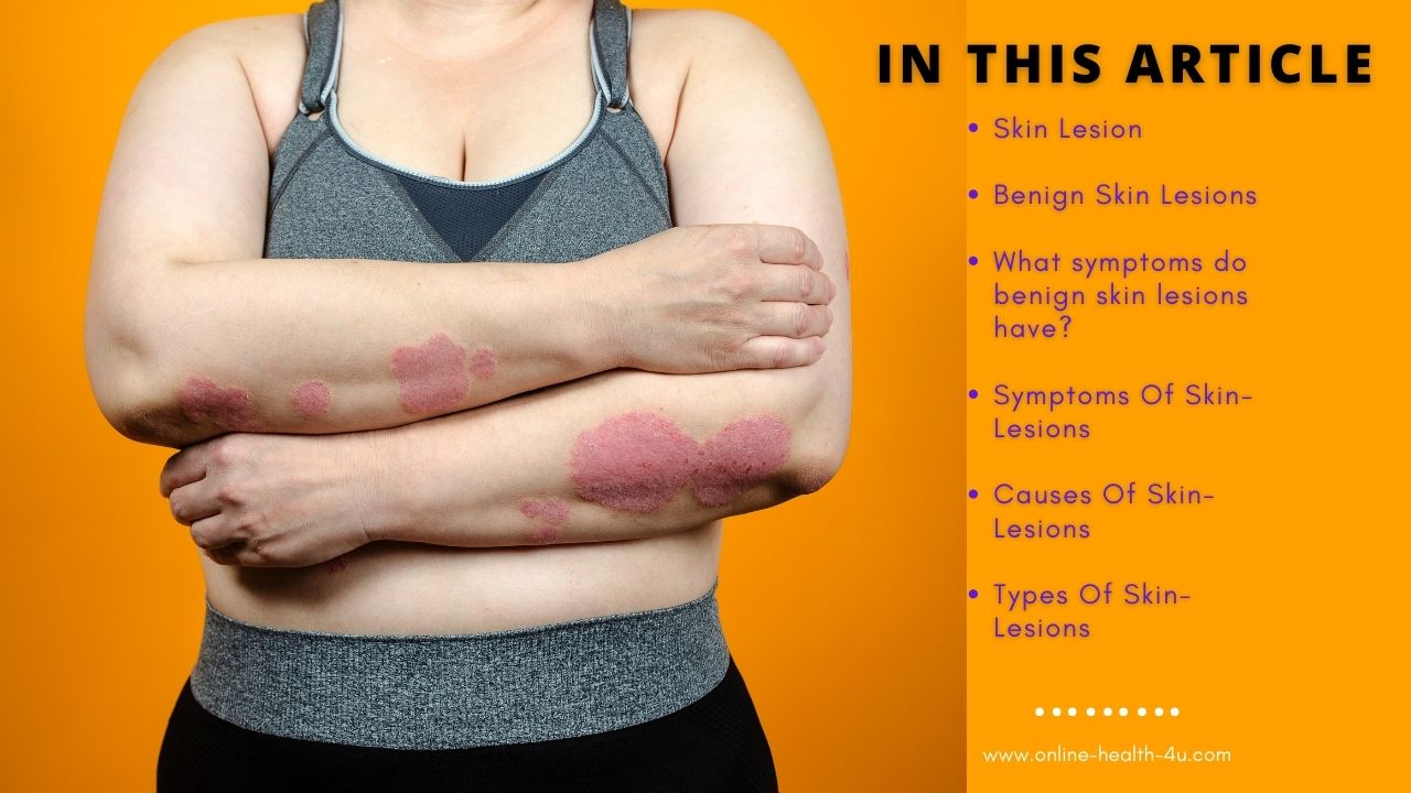 Skin Lesions | This Year Will Be The Year of Skin Lesions.