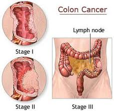 Prostate Cancer Symptoms Tips Signs And Symptoms Of Colon Cancer