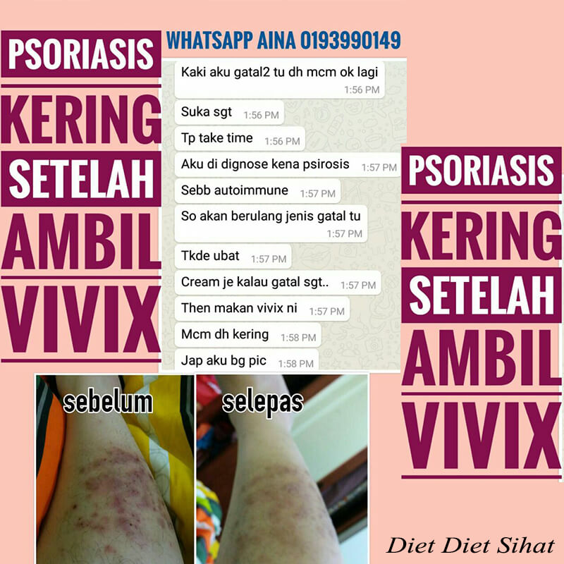 Psoriasis Kering Setelah Ambil VIVIX