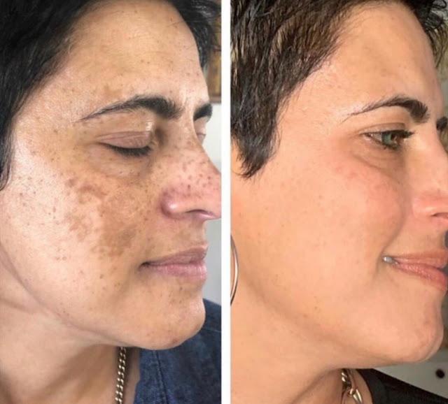 Traitements maison pour enlever les taches de peau