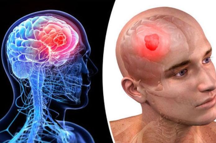 Testimoni Magozai Kanker Otak