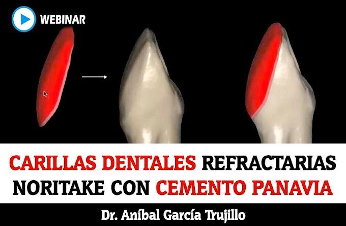 WEBINAR: Carillas Dentales Refractarias Noritake con Cemento Panavia - Dr. Aníbal García Trujillo