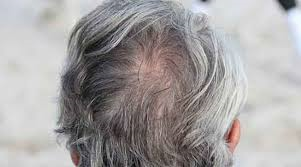 What causes white hair?