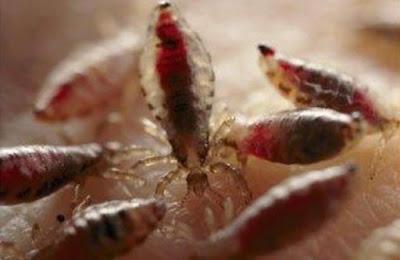 Betulkah Cara Menghilangkan Kutu Rambut Denga Soffel