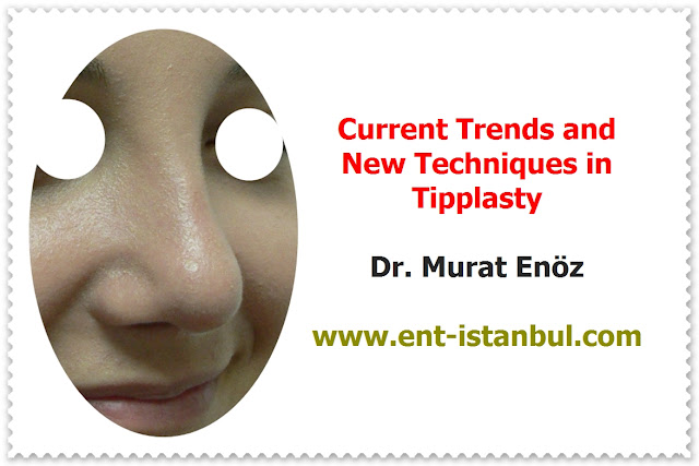 Patient Selection for Tipplasty - Current Concepts in Nasal Tip Plasty - How to Create Natural Nasal Tip? - Creating A Natural-Appearing Nasal Tip Contour - Nose Tip Plasty in Istanbul - Nose Tip Plasty in Turkey