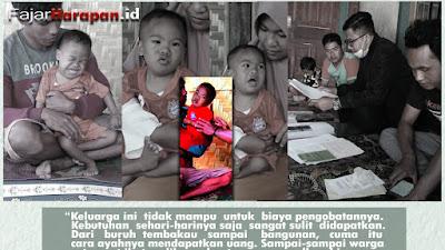 Kisah Pilu Anak Downsyndrome yang Menderita Pembuluh Darah Bocor