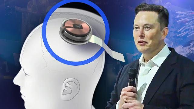 شريحة نيورالينك كل ما تريد معرفته عن تقنية إيلون ماسك الجديدة.. فيديو