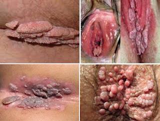 https://de-natur-indonesia.blogspot.com/2017/09/daging-tumbuh-di-bibir-vagina-bagaimana.html