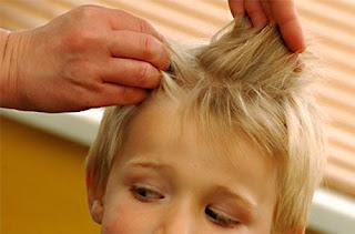 Saç Biti Nedir ? Saç Biti Tedavisi