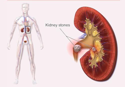 lemon juice help Kidney stone