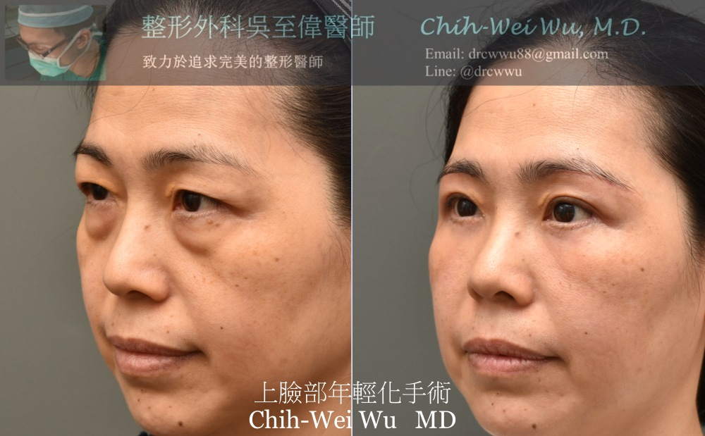 最新拉皮手術案例:上臉部年輕化可以透過眉下拉皮,眼袋,中臉與淚溝補脂來達成,拉皮手術權威吳至偉醫師