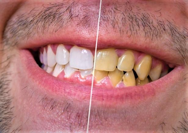كيف نحد من تلف الأسنان بسبب القهوة؟
