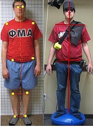 駝背治療, 駝背矯正, 體態矯正, 脊椎側彎, 脊椎側彎矯正治療, 脊椎側彎矯正運動