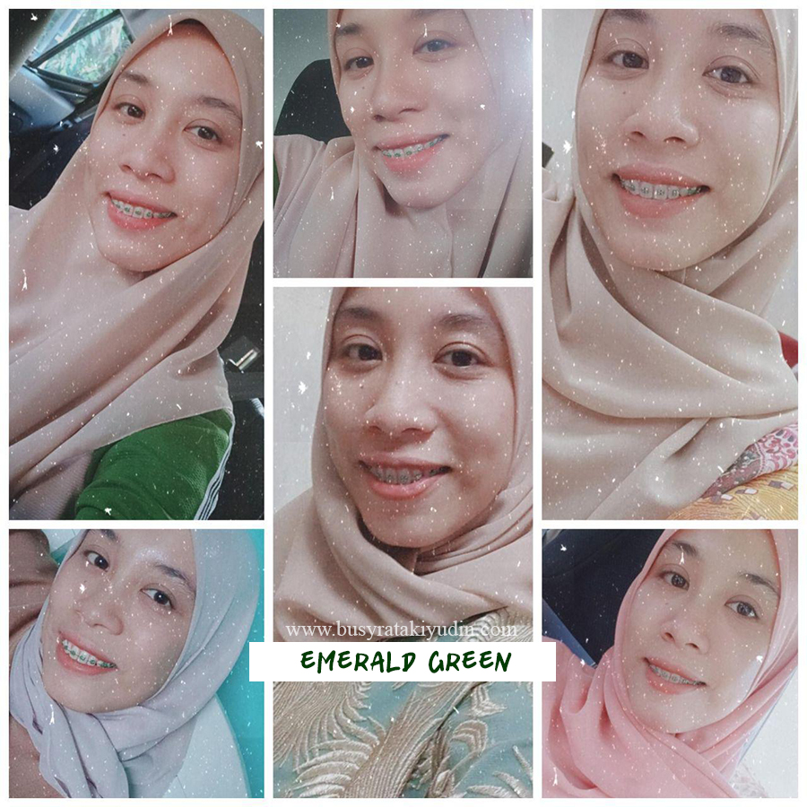 braces review, pakai braces, experience pakai braces, klinik pergigian beauty smile, getah emerald green,