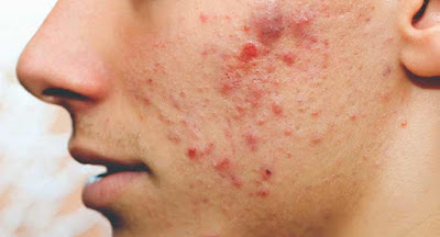 Acne: Home Remedy To Get Rid Of Pimples In 3 Days