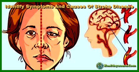 Identify symptoms and causes of stroke disease