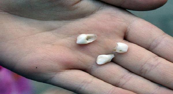 Penyakit Aneh Gigi