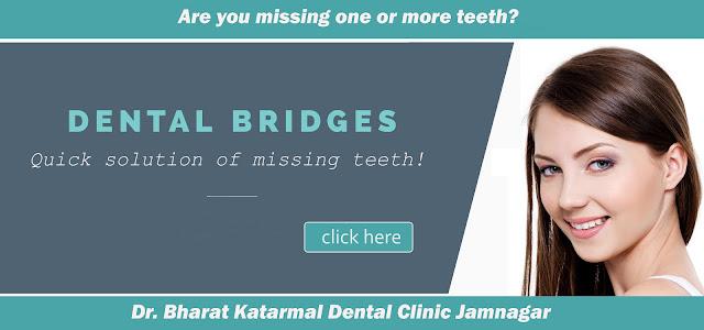 tooth replacement treatment - Bridge at Jamnagar