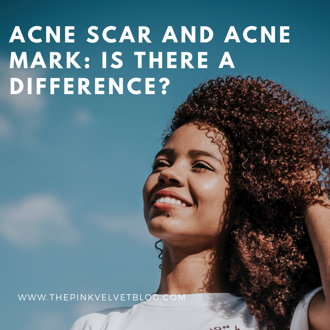 Acne Scar and Acne Mark: Is there a difference?