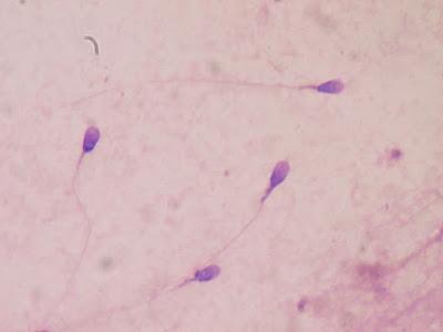Male Fertility | What is semen Test