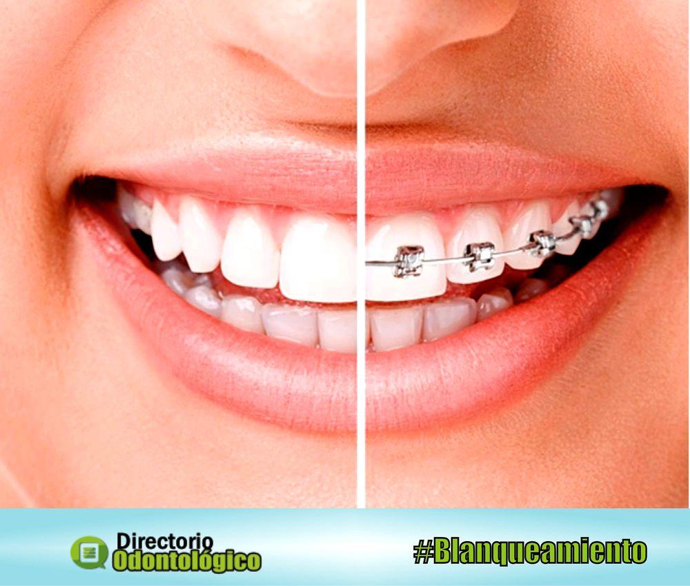 ortodoncia-blanqueamiento