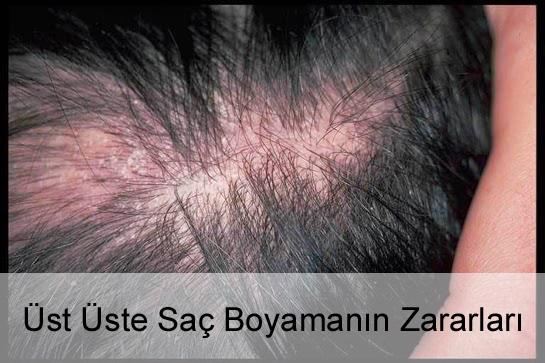 Üst Üste Saç Boyamanın Zararları