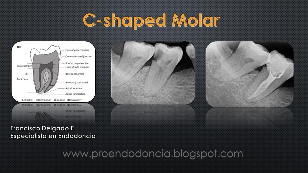 C-shaped Molar | Proendodoncia.blogspot.com