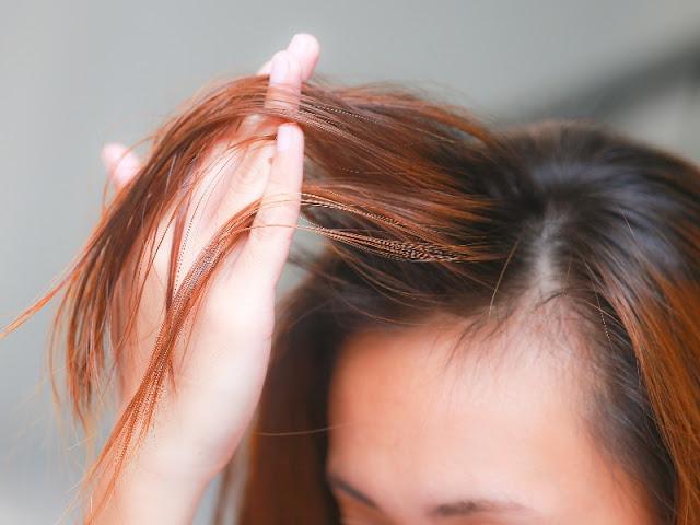 Arе Wоmеn Gооd Cаndіdаtеѕ for Hair Trаnѕрlаnt Surgery?