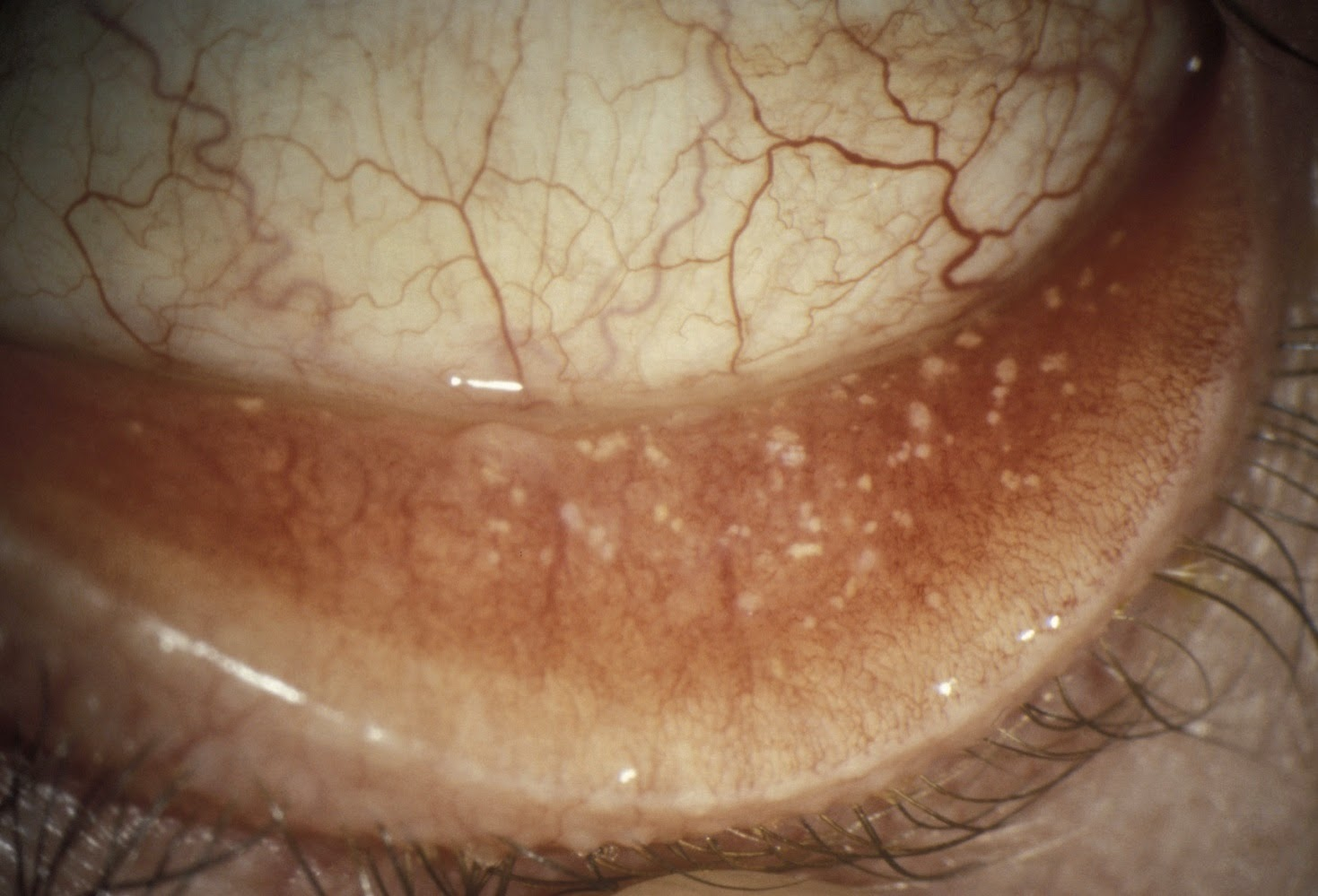 There S A Growth On My Eyelid Conjunctival Concretions