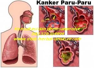 obat batuk paru,obat paru paru basah,obat batuk menahun,obat batuk TBC,obat batuk akibat rokok,obat batuk paru paru,obat paru paru bocor,obat batuk berlendir,obat batuk berdarah