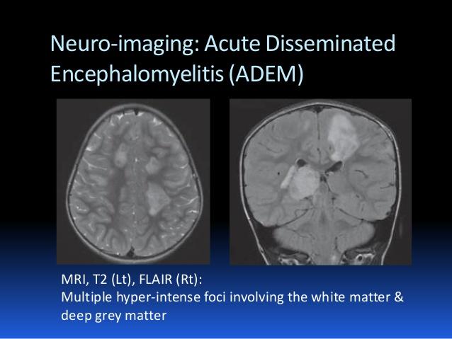 acute disseminated encephalomyelitis adults