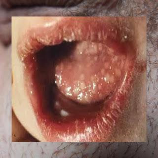 Penyakit Kutil Pada Mulut
