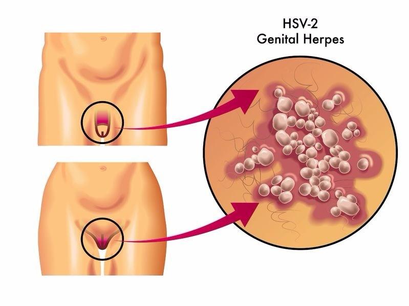 hsv 2 herpes genital