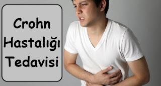 Crohn Hastalığı Tedavisi