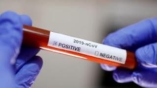 كيف يعمل اختبار فيروس كورونا المستجد؟