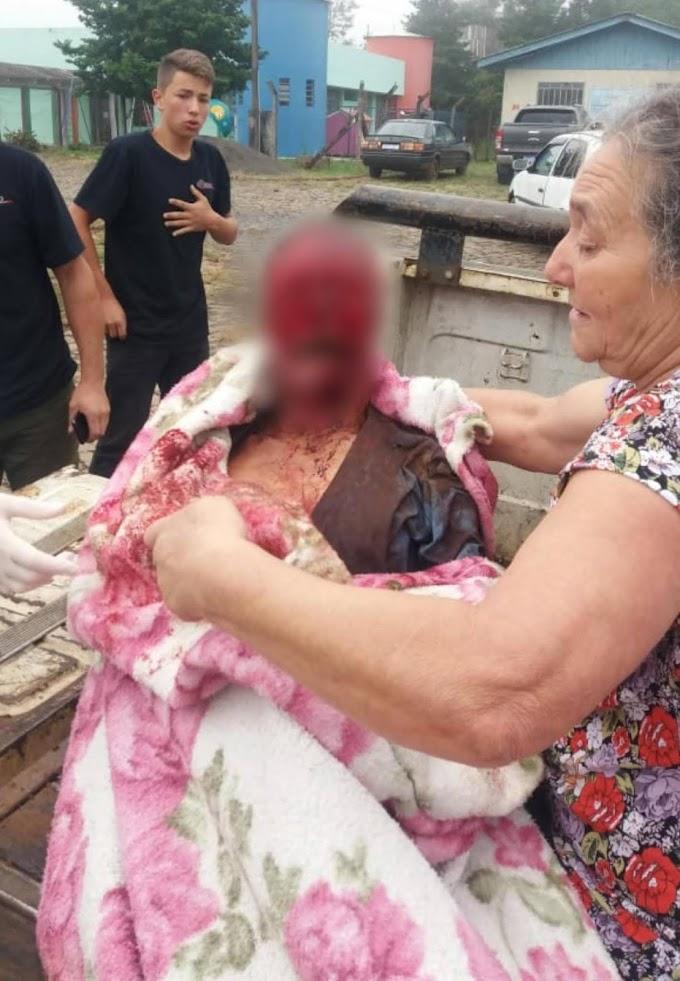 Homem é atacado e morto por 7 pitbulls em Pinhão
