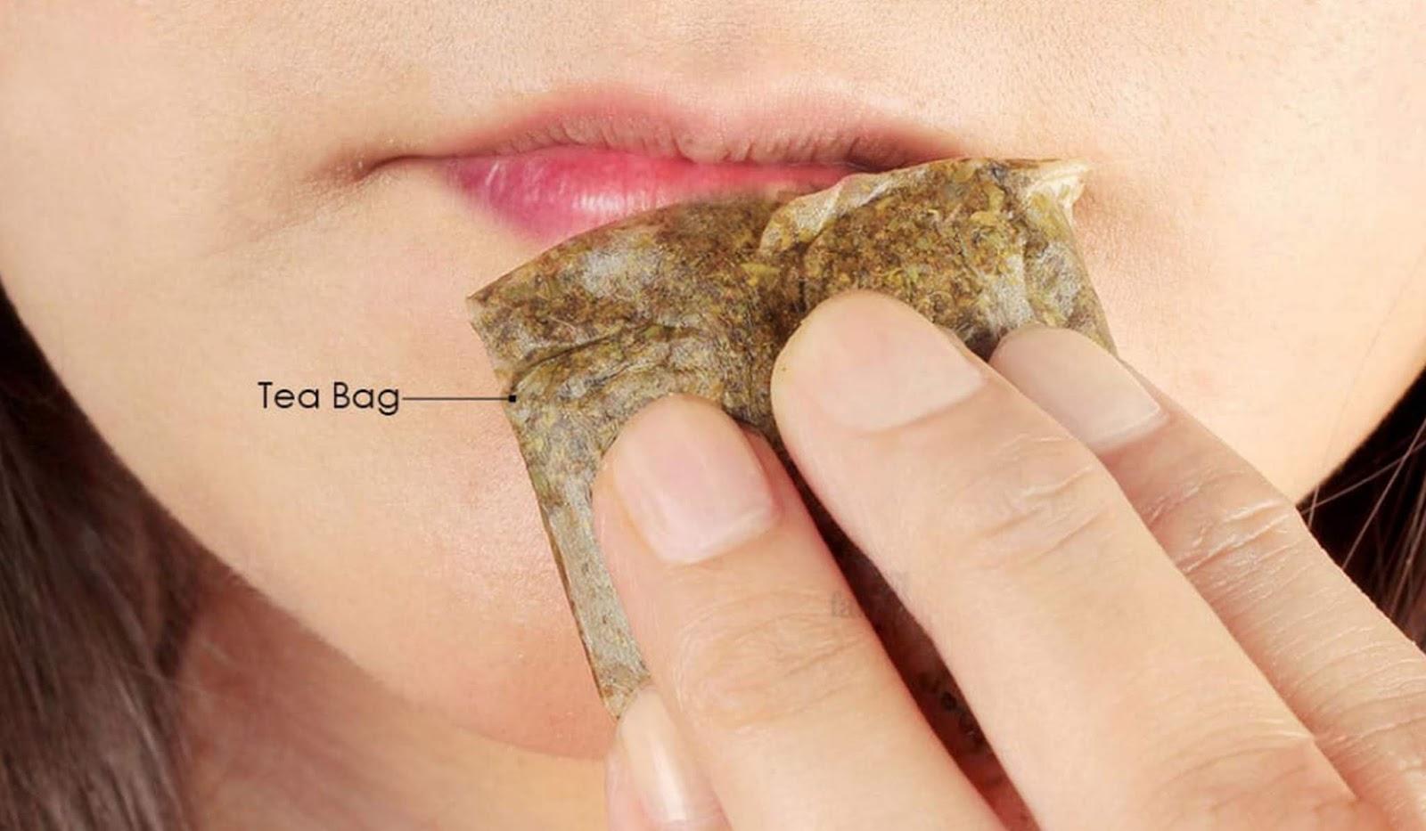 TERBUKTI] Inilah Cara Mengatasi Alergi Lipstik Pada Bibir ...