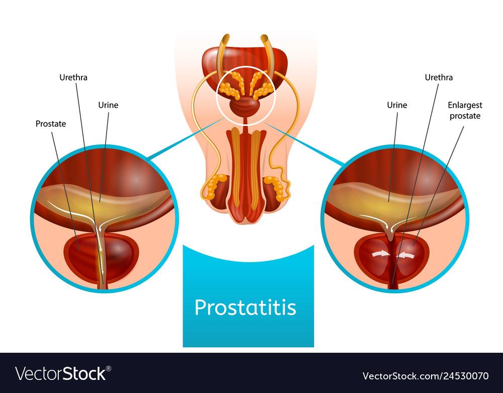 Prostatitis - férfiak jelei, a kezelés és a tünetek - Prosztatagyulladás radiola rózsaszínű