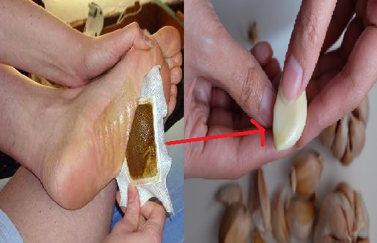 LUAR BIASA!! Begini Caranya Kuras Habis Racun Di Tubuh Dengan Bawang putih dalam Waktu Singkat!